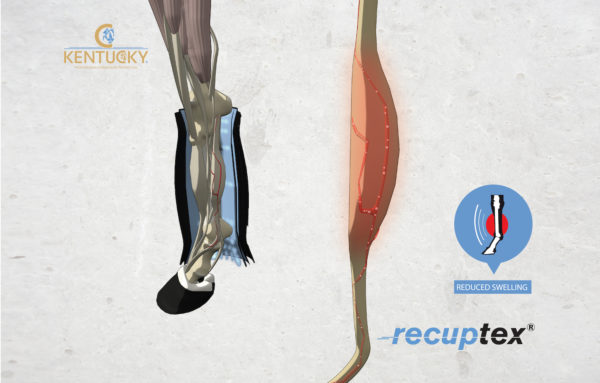 kentucky-recuptex-magneses-istallofasli